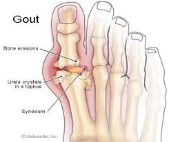 Very Accurate Depiction Of My Gout (Picture Taken From Google